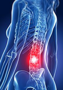 cyberknife-spine