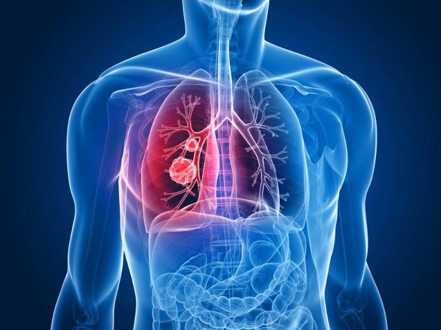 White Paper Cyberknife for Lung Metastases