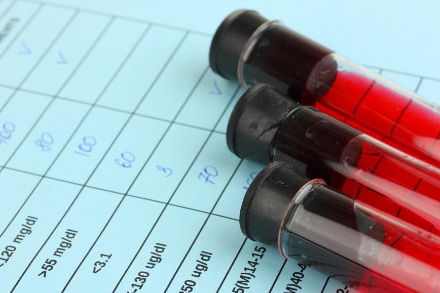Understanding PSA Tests